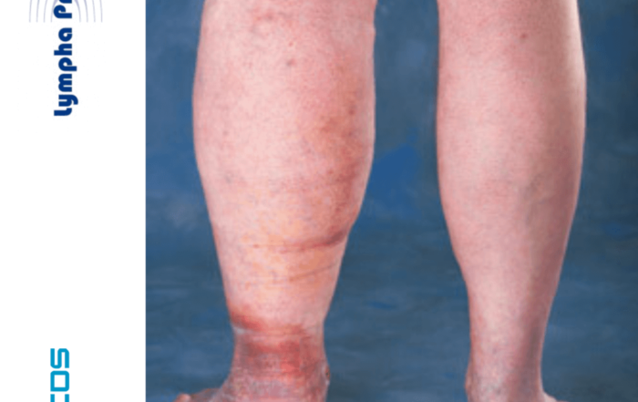 diferencia el edema venoso del linfedema