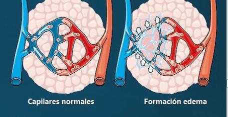 Formación del edema