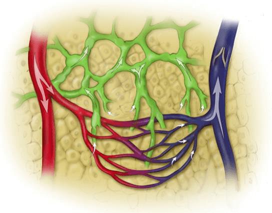 linfedema sistema circulatorio